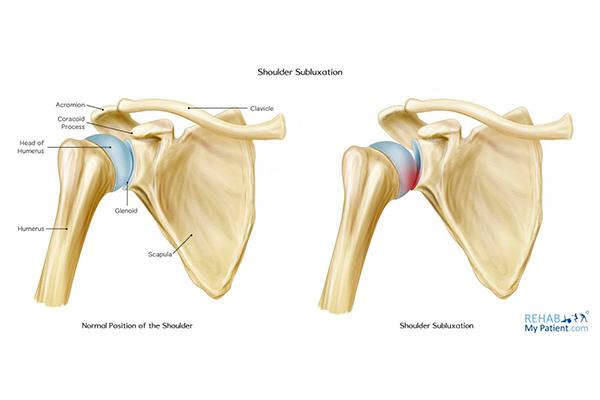 Que es una subluxacion de hombro